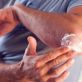 Man applies cream on his elbow.People, healthcare and medicine concept